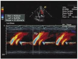 Ecocardiografia in mod M