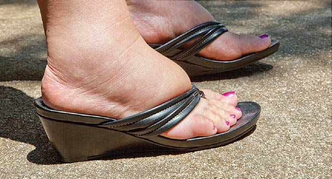 ameliorarea edemului la picioare