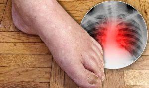 edemul mâinii și picioarelor cu varicoză