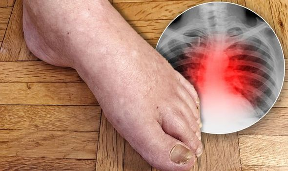 de ce vițeii mei se înghesuie în timpul nopții cauzele edemului brusc la nivelul picioarelor