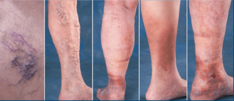boala varicoasa a membrelor inferioare