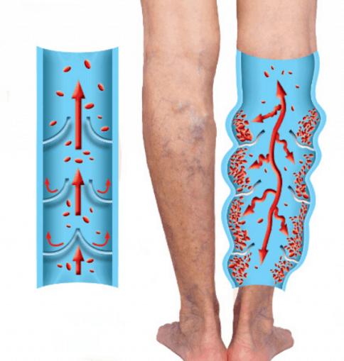 cum de a salva picioarele de la venele venelor ce medicamente împotriva varicozei