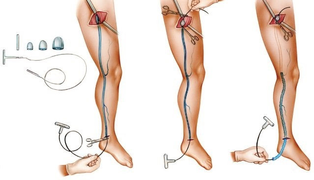 durere venoasă internă a gleznei