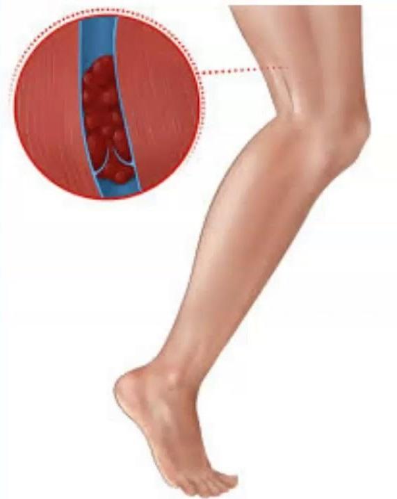 cu legume varicoase piciorul conduce crampe