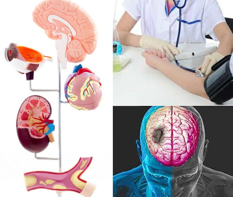 Care sunt complicațiile hipertensiunii arteriale?