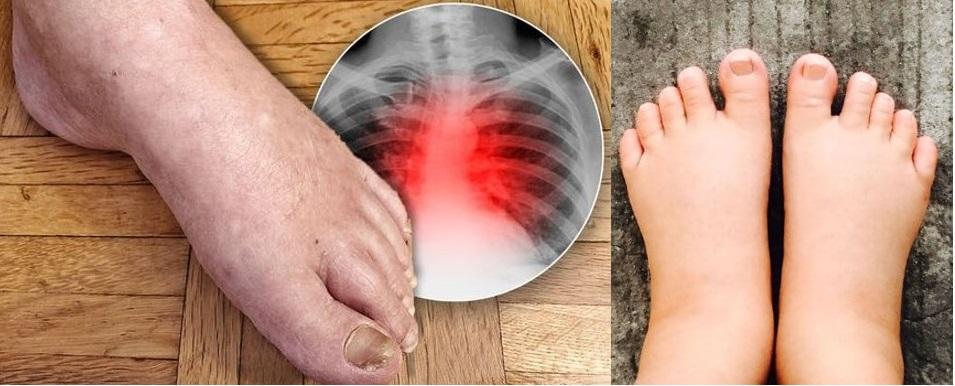 străluciți picioarele în varicoză)