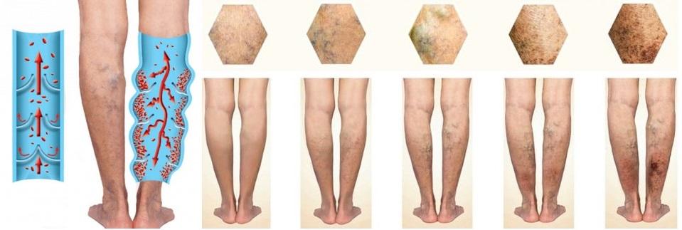 tratamentul bandajelor de sare din venele varicoase