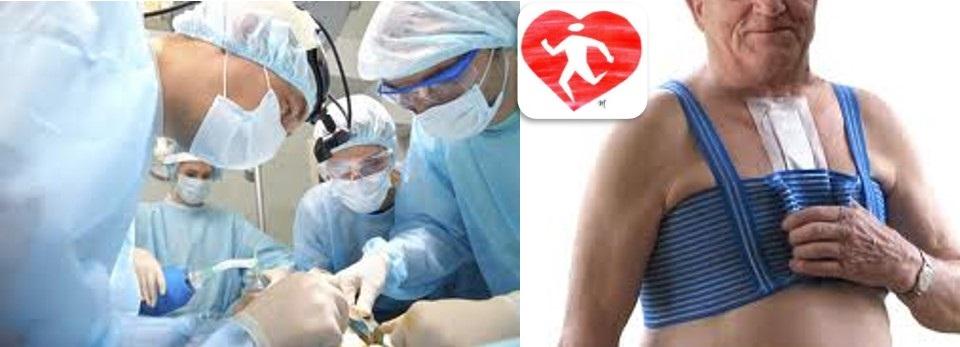 recuperarea varicoasă după operație